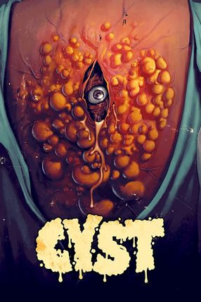 Poster: Cyst